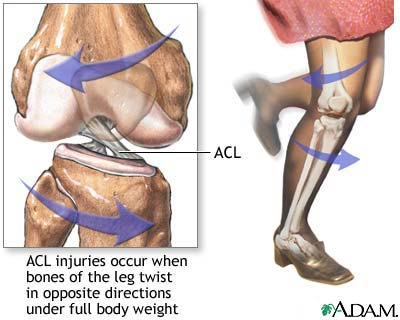 image acl diagram
